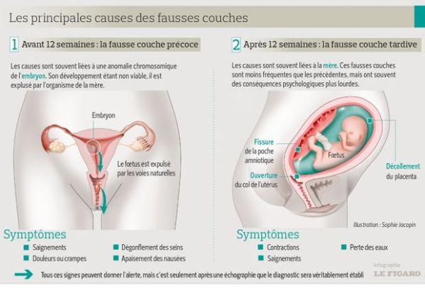 Les types de fausses couches